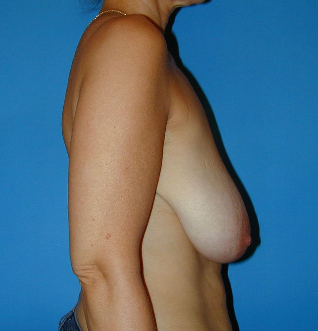 Hypertrophie mammaire