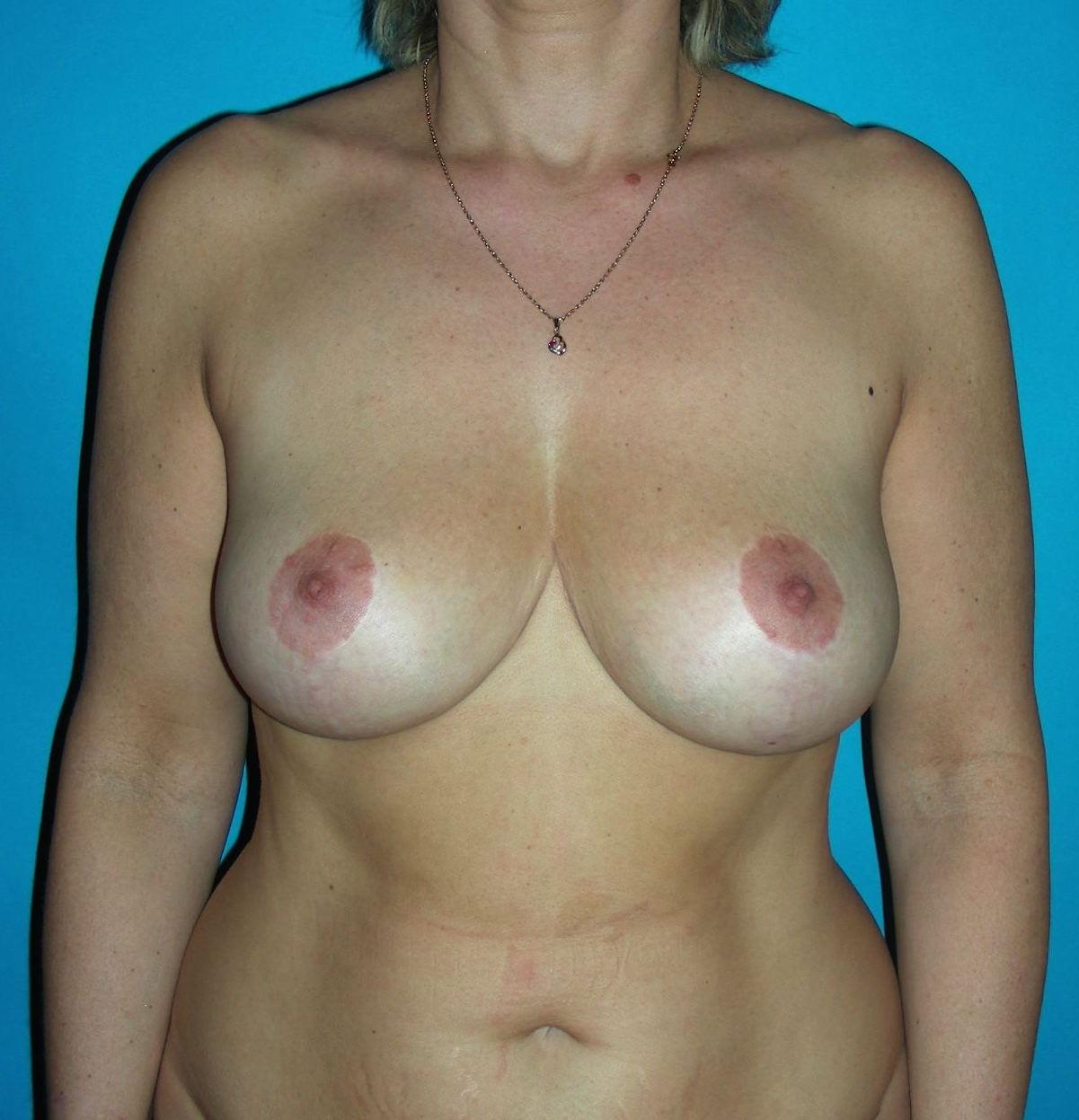 2 ans après réduction mammaire