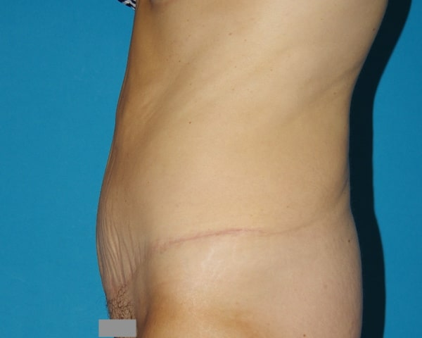 1 an après abdominoplastie