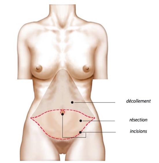 Abdominoplastie avec transposition de l'ombilic