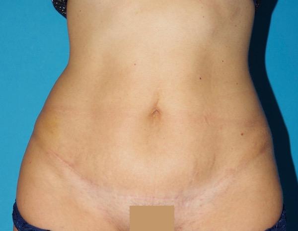 8 mois après abdominoplastie