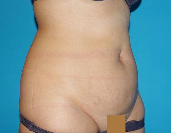 Avant abdominoplastie