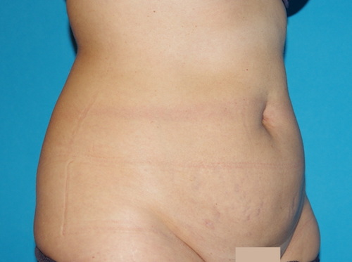 distension du ventre modérée