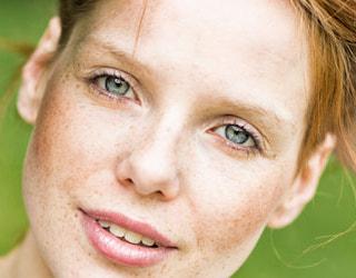 chirurgie annecy geneve face cou menton rajeunissement lifting paupieres rides blepharoplastie cervico facial
