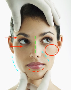 bilan chirurgie esthetique visage annecy geneve bottero